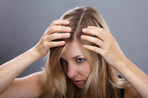 Chica con caída del pelo
