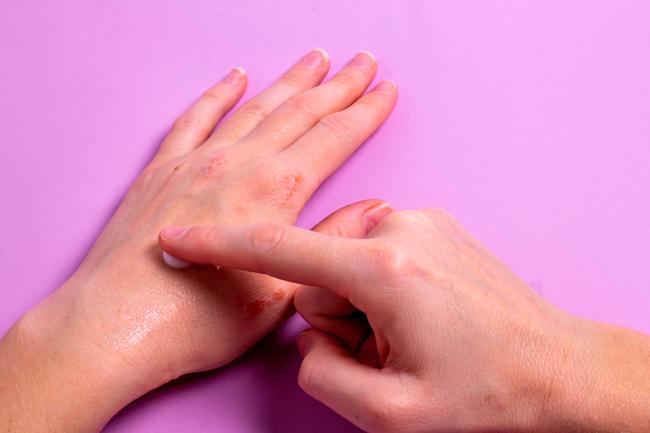 Ungüento de propóleo para piel dañada